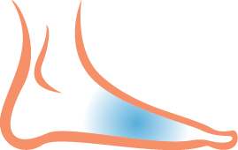 Foot and Arch Pain Treatment in Gawler and Balaklava - Podiatrist